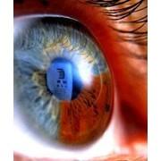 Консультация врача офтальмолога, компьютерная диагностика бесплатно фото