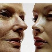 Лазерное удаление морщин, омоложение кожи лица, шеи, декольте фото