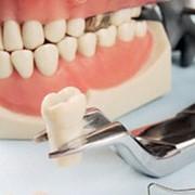 Стоматологическое литье фото