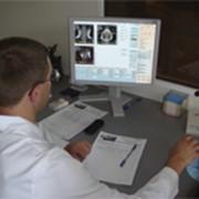 Диагностика и лечение заболеваний толстой кишки, Лечение толстой кишки в Алматы фото