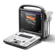 Портативный ультразвуковой сканер S6 фото