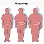 Ожирение и лишний вес, лечение фото
