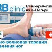 Ударно-волновая терапия для лечения ног фото