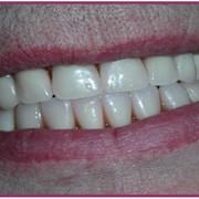 Восстановление и протезирование зубов в Москве. фото