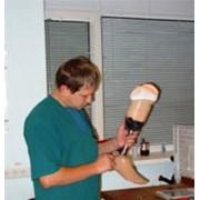 Протезирование нижних конечностей (ампутация ниже колена) фото