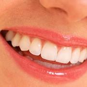 Профессиональная гигиена полости рта фото