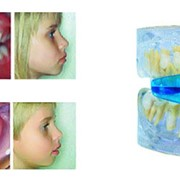 Лечение зубов у детей фото