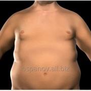Лапароскопическое гастрошунтирование для лечения ожирения без сшивателей фото