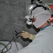 Миома матки - операция и лечение фото