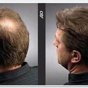 Восстановление волос, решение проблемы волос фото