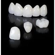Изготовление зубных коронок фото