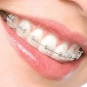Ортодонтія фото