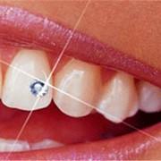 Зубные украшения или скайс (Skyce) фото