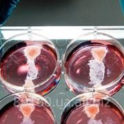 Оплодотворение in vitro полный цикл (ЭКО) - услуги ( без стоимости медикаментов) фото