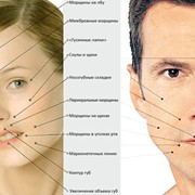 Контурная пластика лица, груди, голеней и пр. БИОГЕЛЕМ фото