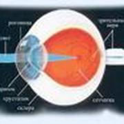 Ультразвуковая диагностика заболеваний глазного яблока фото