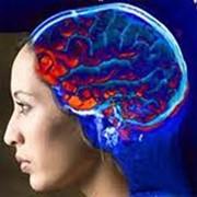 Диагностика и лечение ишемической болезни головного мозга, Диагностика ишемии в Алматы фото