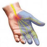 Лечение боли и онемения в кисти рук в алматы фото