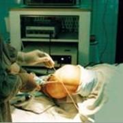 Амбулаторная хирургия. фото