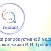 Лечение бесплодия в клинике репродуктивной медицины имени академика В.И. Грищенко фото