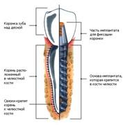 Дентальная имплантация фото