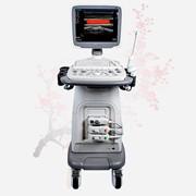УЗИ аппарат SonoScape S11 фотография