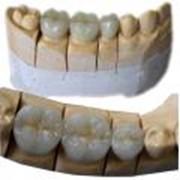 Зуб металлокерамический на титане фото