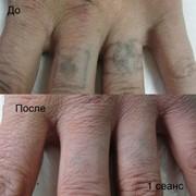 Лазерное удаление тату и перманентного макияжа (брови, губы) фото