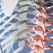 Лечение заболеваний позвоночника, грыжа межпозвоночного диска фото