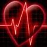 Лечение артериальной гипертензии (гипертонии) и гипотонии фото