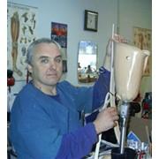 Изготовление протеза нижней конечности (ампутация ниже колена) фото