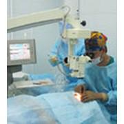 Компьютерная диагностика зрения, лечение фото