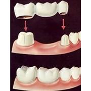 Изготовление протезов - зубы фото