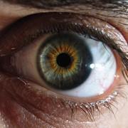 Глазная хирургия, офтальмология Киев фото