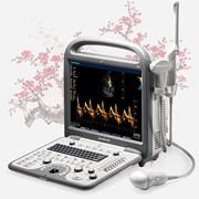 УЗИ аппарат SonoScape S8 фото
