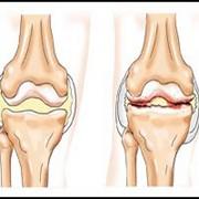 Экспресс-лечение артрита (полиартрита), до 4 дней. фото