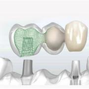 Лазерная имплантация зубов фото