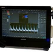 Цветной ультразвуковой сканер новейшей концепции фото
