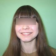 Пародонтологическое лечение фото