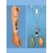 Изготовление миоэлектрического протеза верхних конечностей фото