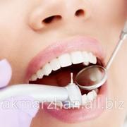 Терапия лечение зубов фото