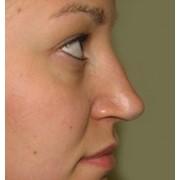 Ринопластика - пластика носа фото
