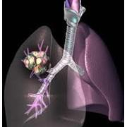 Лечение других онкологических заболеваний фото