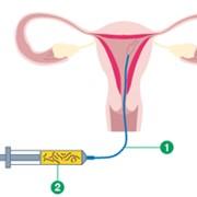 ВМИ внутриматочная инсеминация, (Клиника репродуктивной медицины ВіоТехСом) фото