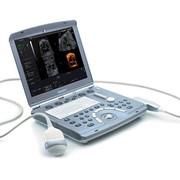 GE Voluson I - портативный УЗИ аппарат для акушерства и гинекологии фото