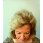 Трансплантация волос фото