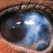 Диагностика, лечение глаукомы фото