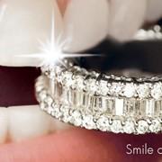 Выравнивание зубного ряда, исправление прикуса фото