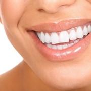 Удаление зубного камня в Кишиневе фото