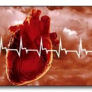 Кардиологическая реабилитация. Лечение сердечно-сосудистой системы. фото